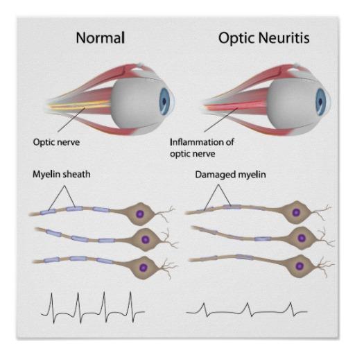 OpticNeuritis