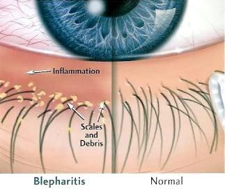 Seb Blepharitis